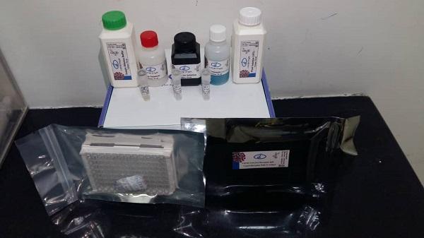کیت تشخیص سرمی کووید ۱۹ توسط محققان موسسه رازی ساخته شد